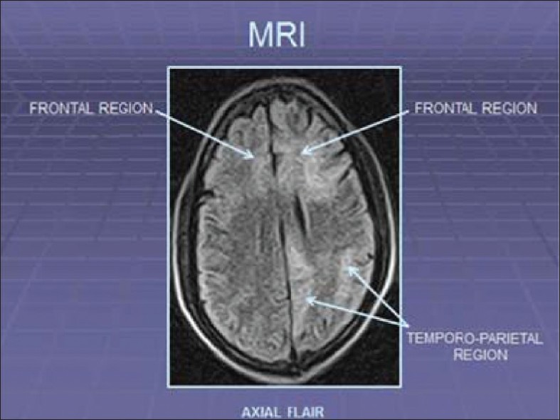 Figure 1: MRI brain showing hyper intense areas in frontal and temporo‑parietal areas