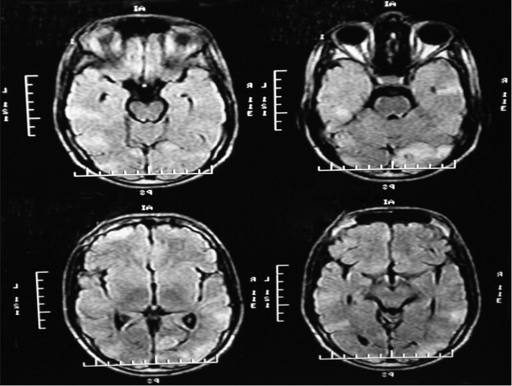 Figure 3: Magnetic resonance imaging revealing small multifocal discreet tubers in bilateral cerebral hemispheres