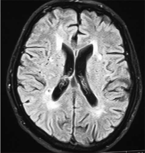 Figure 1: Magnetic resonance imaging brain shows multiple vascular infarcts
