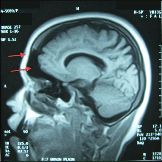 Figure 1: MRI brain plain. Arrows show the thickened vault and decreased brain volume