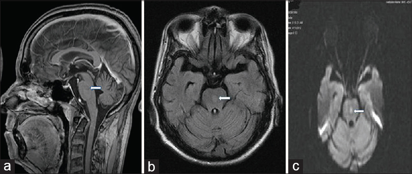 Figure 1: Contrast enhanced magnetic resonance imaging of brain ill-defined area of altered signal intensity in central pons (7.0 mm × 6.7 mm × 8.1 mm). (a) Sagittal section postcontrast brain shows no postcontrast enhancement. (b) On fluid-attenuated inversion recovery it is hypo-intense. (c) On magnetic resonance imaging diffusion there is true restriction of diffusion on diffusion weighted imaging and apparent diffusion coefficient map
