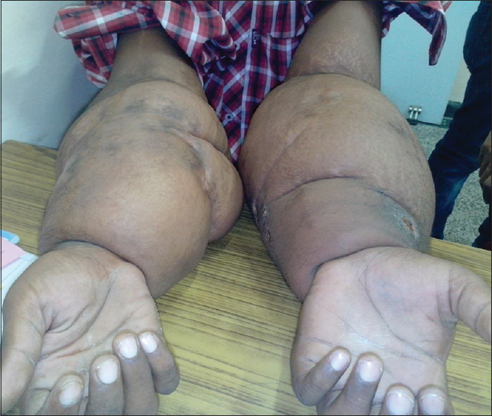 Figure 2: Puffy hand syndrome due to lymphoedema